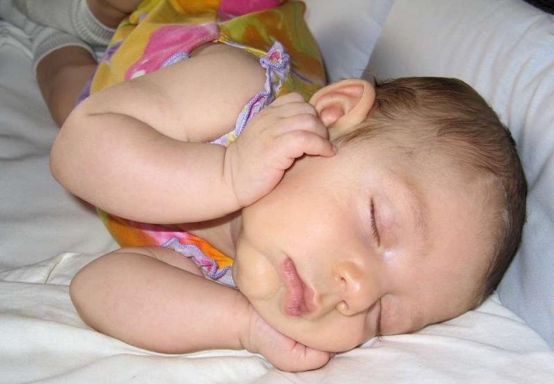 婴儿先天甲减的症状有哪些婴儿先天甲减的病因有哪些